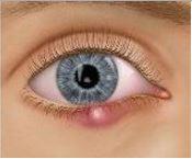 ontstoken-ooglid